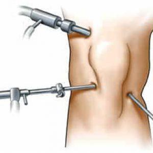 Artroscopia3