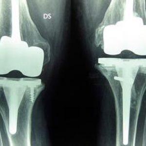 chirurgia-protesica